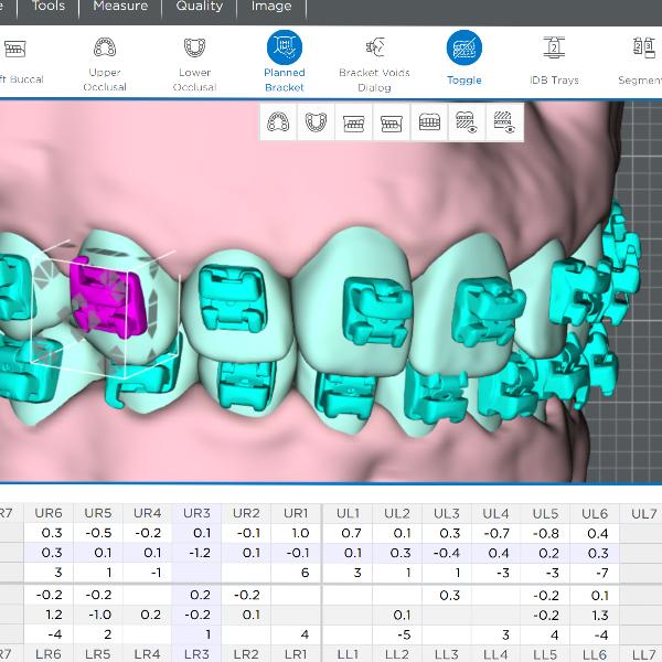 3d-render-of-custom-orthodontic-braces