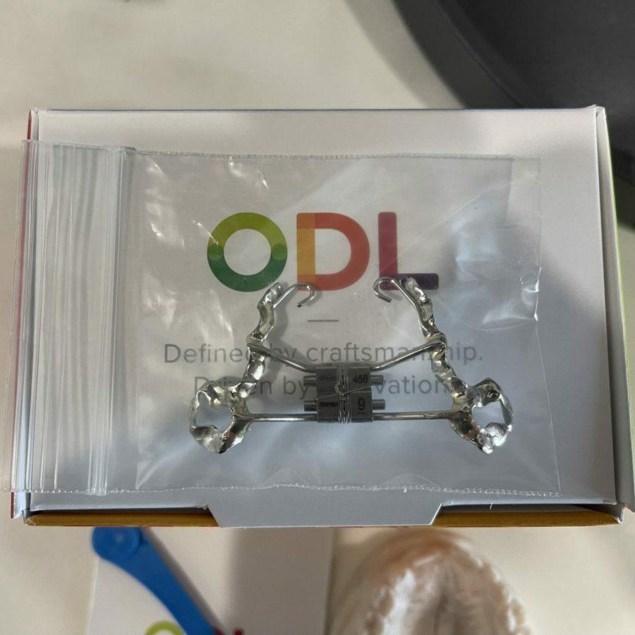 Custom 3D Printed Maxillary Expander, Doesn't Separators